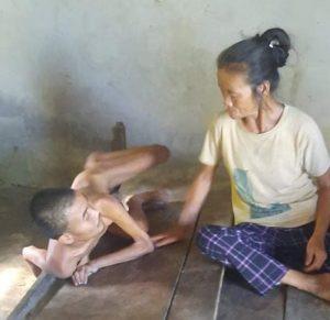 Hoàn cảnh đáng thương của người mẹ già yếu chăm con tâm thần